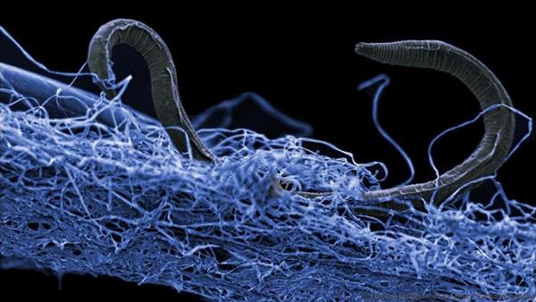 Mikroorganizm znaleziony prawie 2 km pod powierzchnią Ziemi. Źródło: Gaetan Borgonie/Extreme Lifa Isyansya, Belgium
